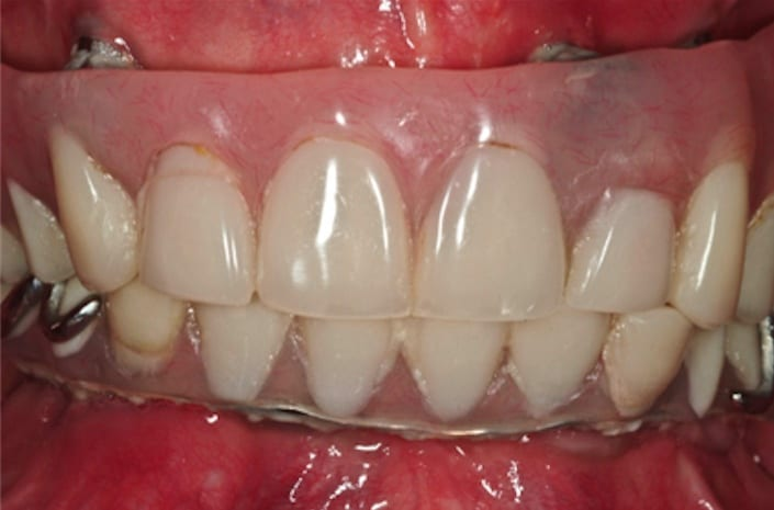 Failed implant reconstruction before