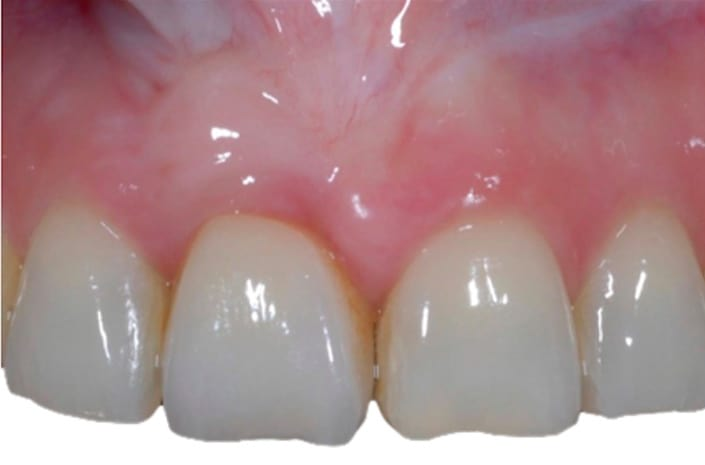 Gum and tooth reconstruction after