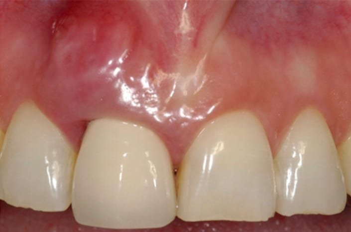 Gum and tooth reconstruction before
