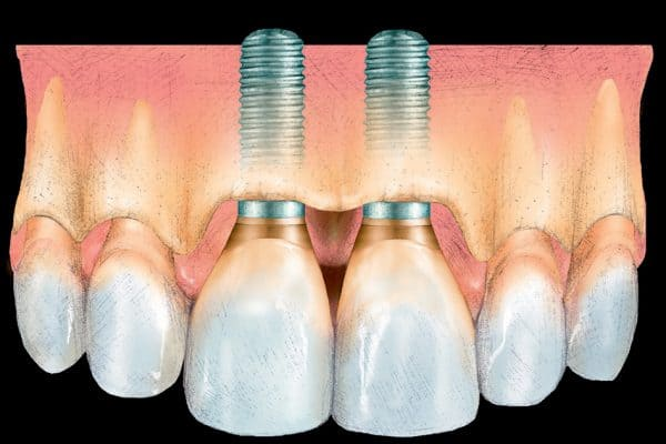 Esthetic Implant Dentistry: Diagnosis and Treatment Planning