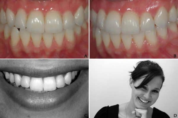 Porcelain Laminate Veneers: A Study In Predicable Outcomes by Dr. Mamaly Reshad