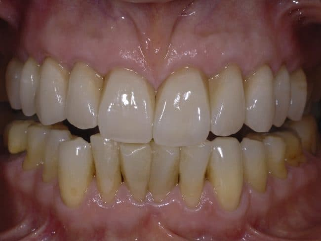 Jane's mouth after veneers