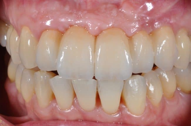 mary-implants-and-tooth-replacement