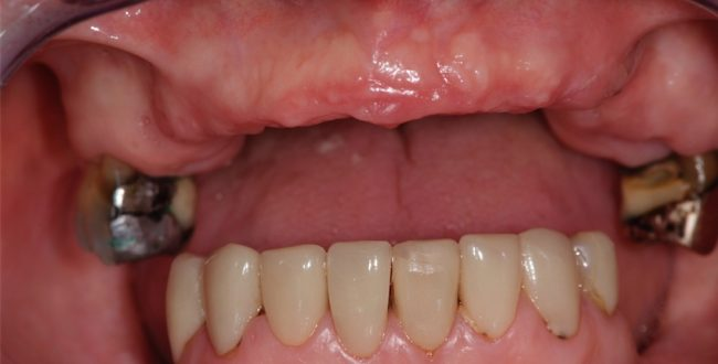 Full-mouth reconstruction - Janice