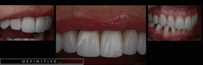 Anne - Case Study - crown replacement