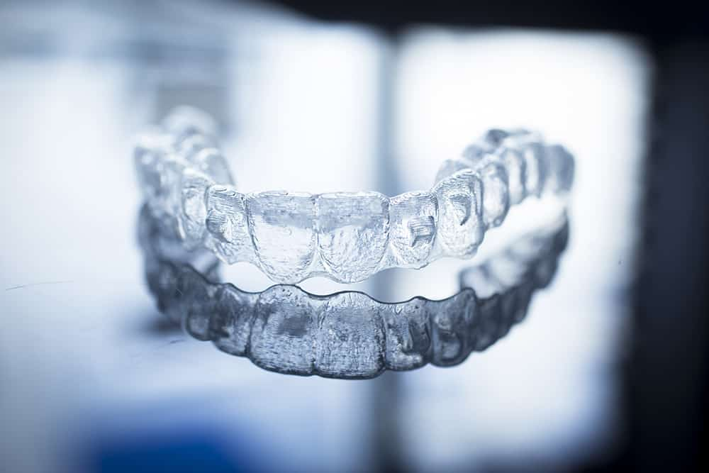 Invisalign by ArtLab Dentistry and Dr. Mamaly Reshad