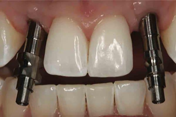 Treatment Planning of Implants in the Aesthetic Zone by Dr. Mamaly Reshad