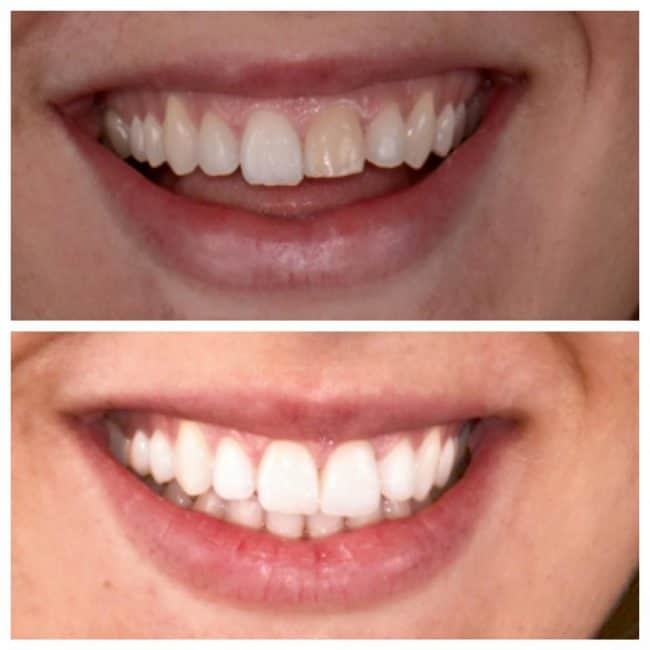 Before and after view of girl's smile after front tooth restoration