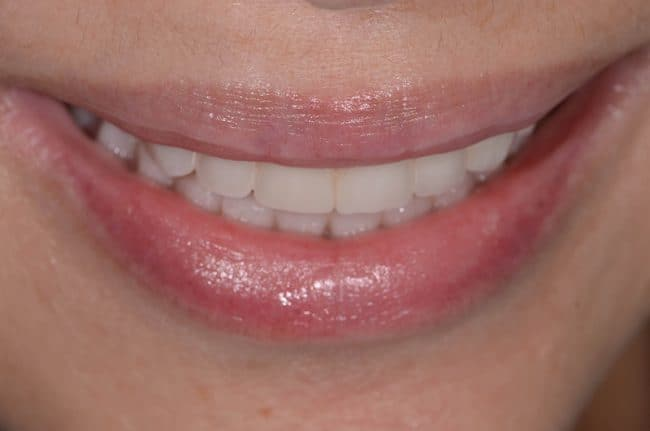 After photo of ArtLab Dentistry after zygomatic implants