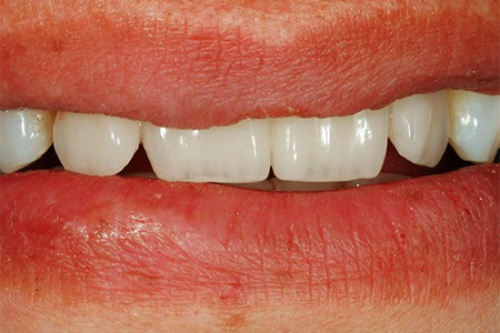 Maria - badly placed dental implants - Figure 11
