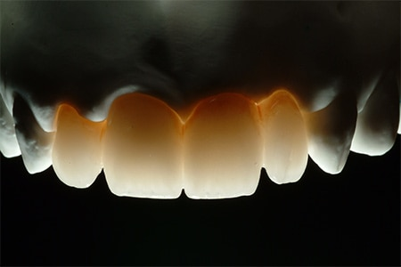 Maria - badly placed dental implants - Figure 6