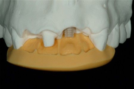 Maria - badly placed dental implants - Figure 7a
