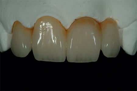 Maria - badly placed dental implants - Figure 8