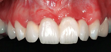 Maria - badly placed dental implants - Figure 9