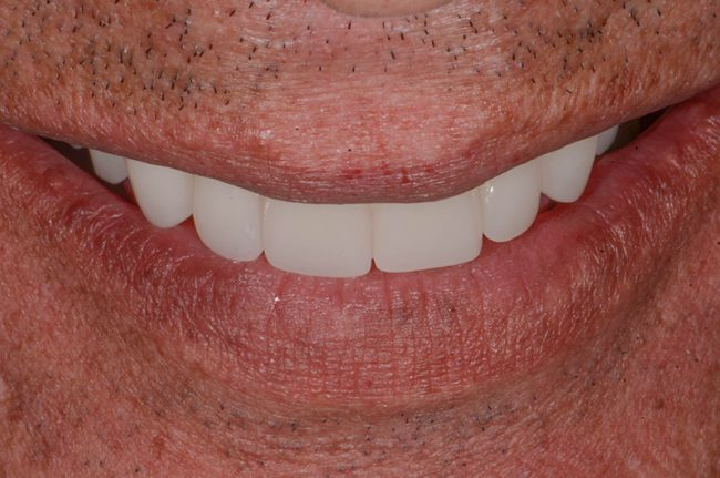 David's front smile and teeth