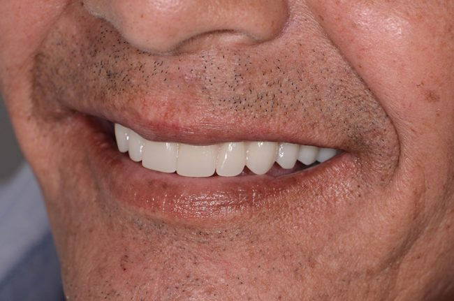 All On 4 Dental Implant - Patient - David