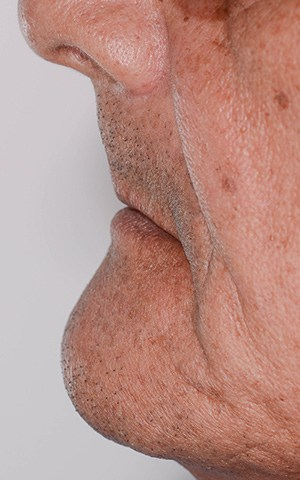 David's sunken face prior to new all-on-4 dental implants