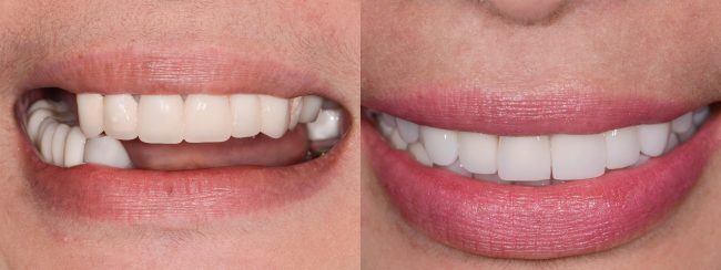 Gloria's smile - before and after smile and teeth