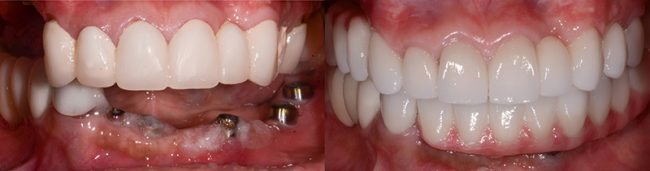 Gloria's teeth before and after