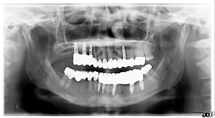 Gloria x-ray after full mouth reconstruction