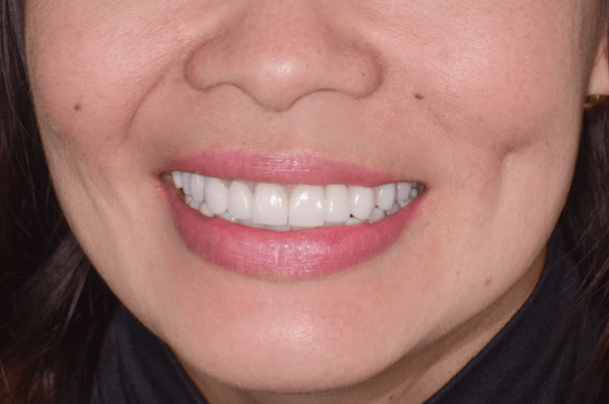 Gloria - after dental implants by Dr. Mamaly Reshad, DDS
