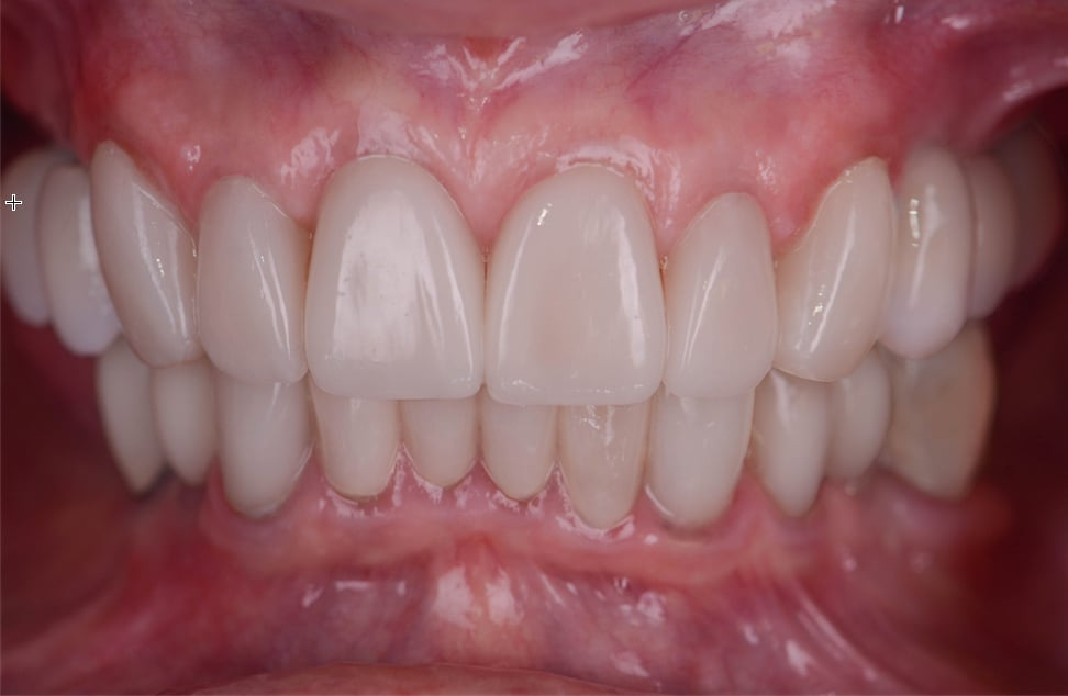 ArtLab Dentistry patient after treatment