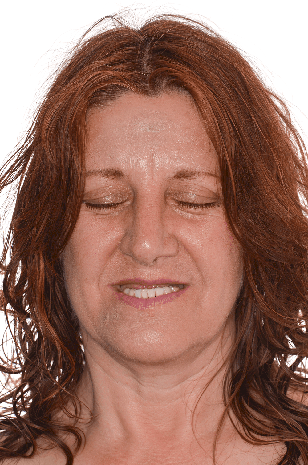 Jayne - front view of face before smile transformation