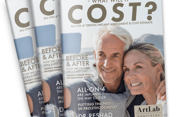 All-On-4 Dental Implants: What Will It Cost?