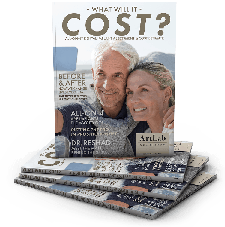 What will All-On-4 Dental Implants Cost? - Magazine