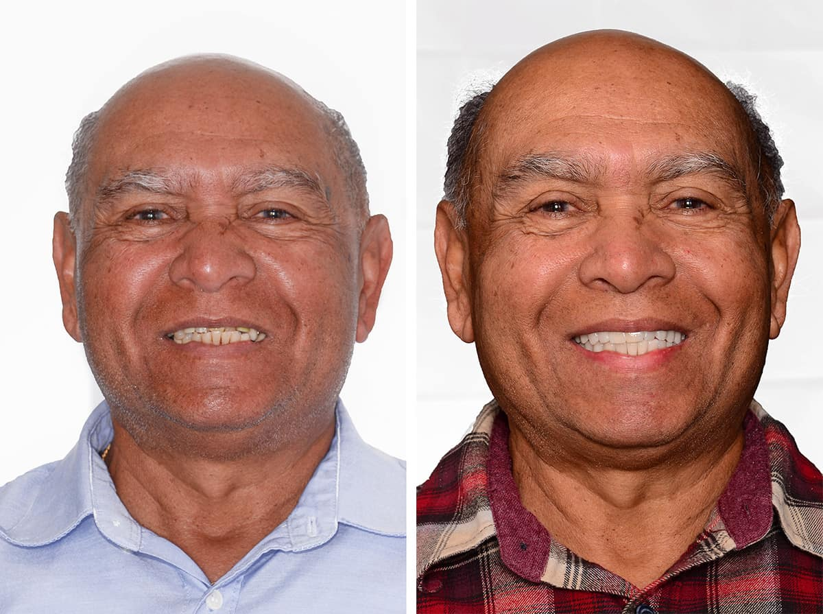 Fred before and after dental implants