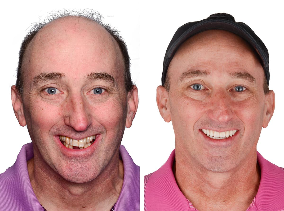 John, a patient of ArtLab Dentistry before and after all-on-4 dental implants