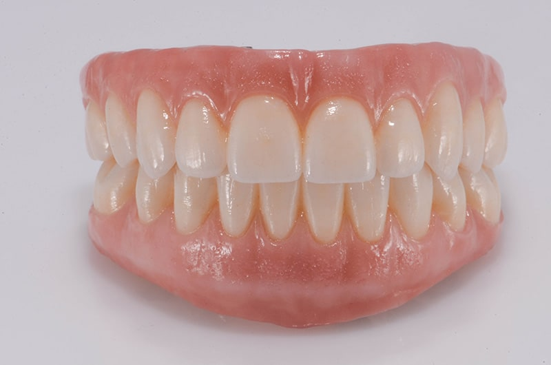 ArtLab Dentistry case study with all-on-4 dental implants