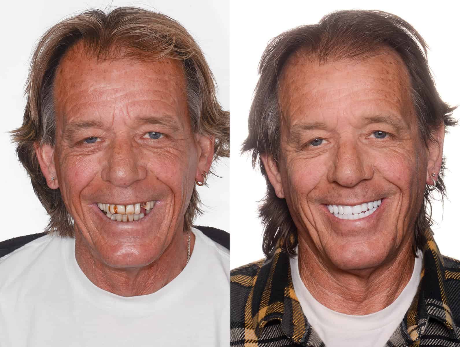 John J. patient of ArtLab Dentistry before and after photo