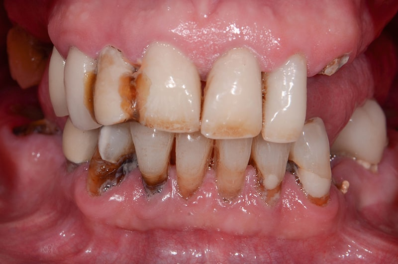 Photo of ArtLab Dentistry patient's teeth before treatment