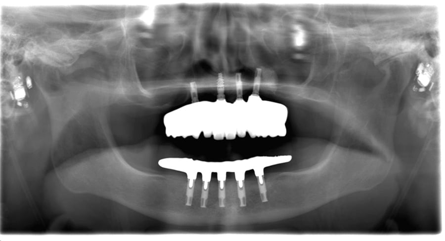 ArtLab Dentistry patient after upper jaw treatment
