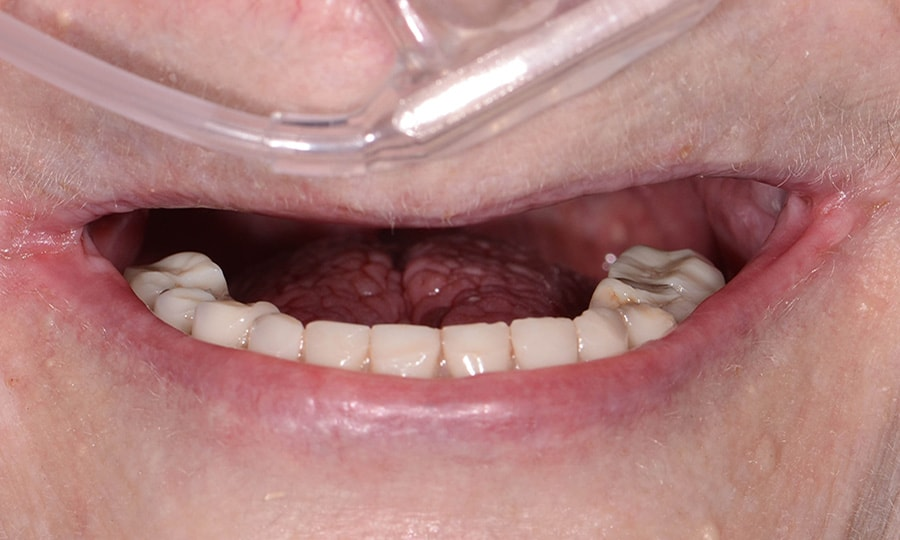 Dr. Libbe - Smile - Before