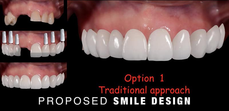 Proposed Smile Design for Patient