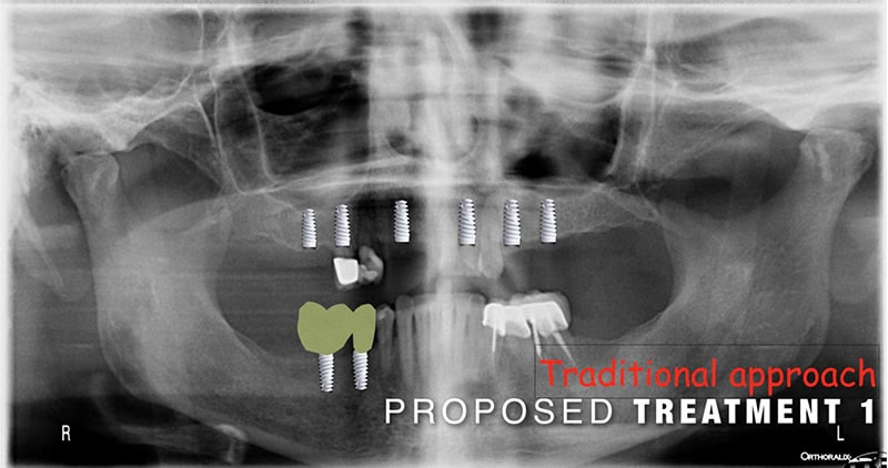 Proposed treatment for ArtLab Dentistry patient with dental implants
