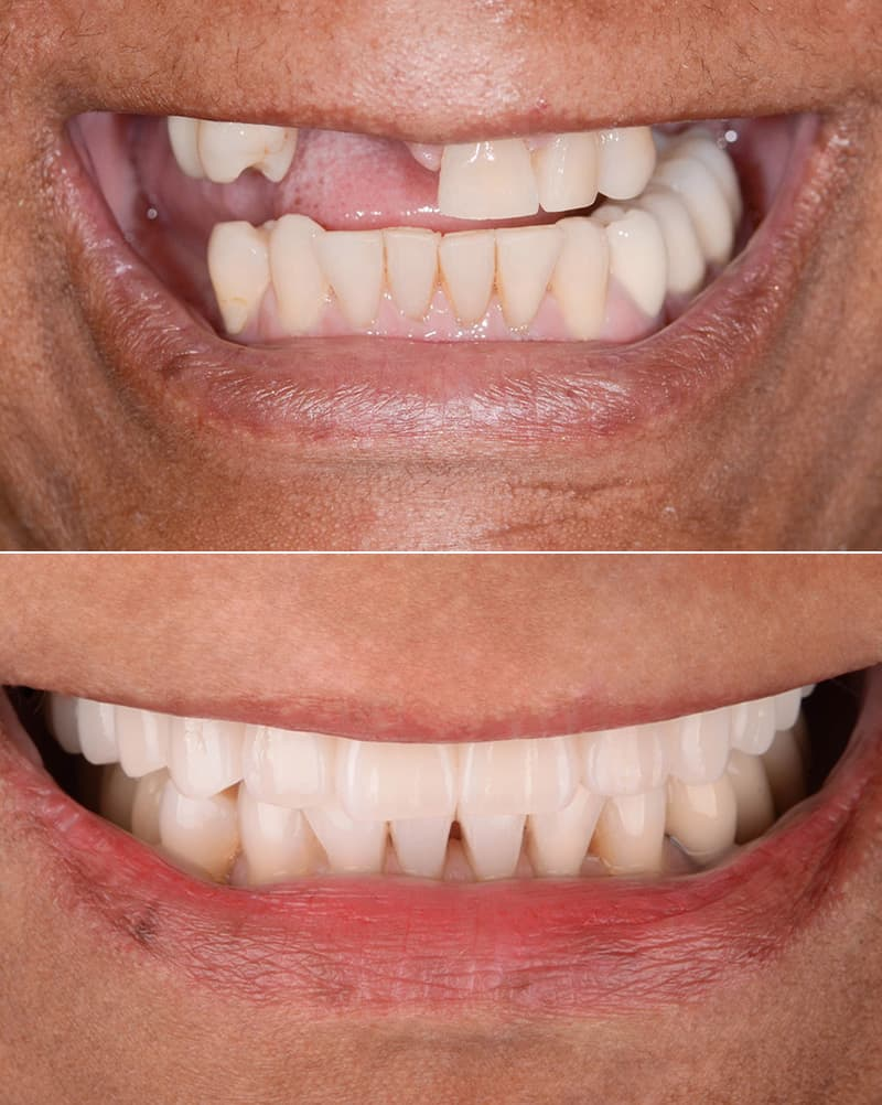 ArtLab Dentistry patient before and after dental implant treatment