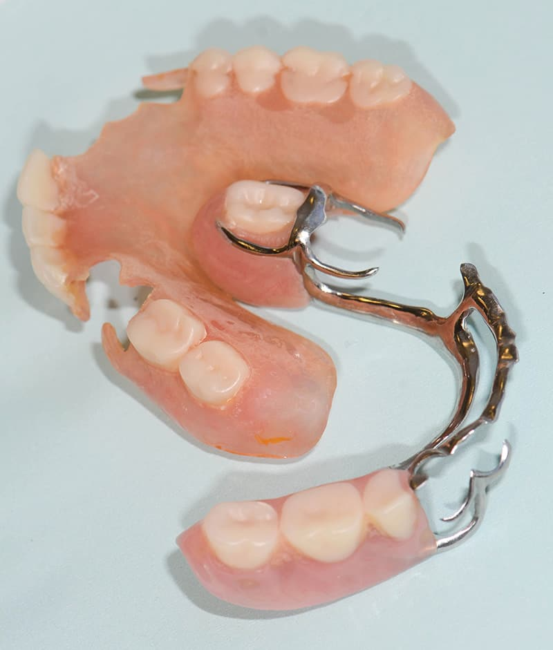 ArtLab Dentistry patient old partials no longer needed after dental implant treatment