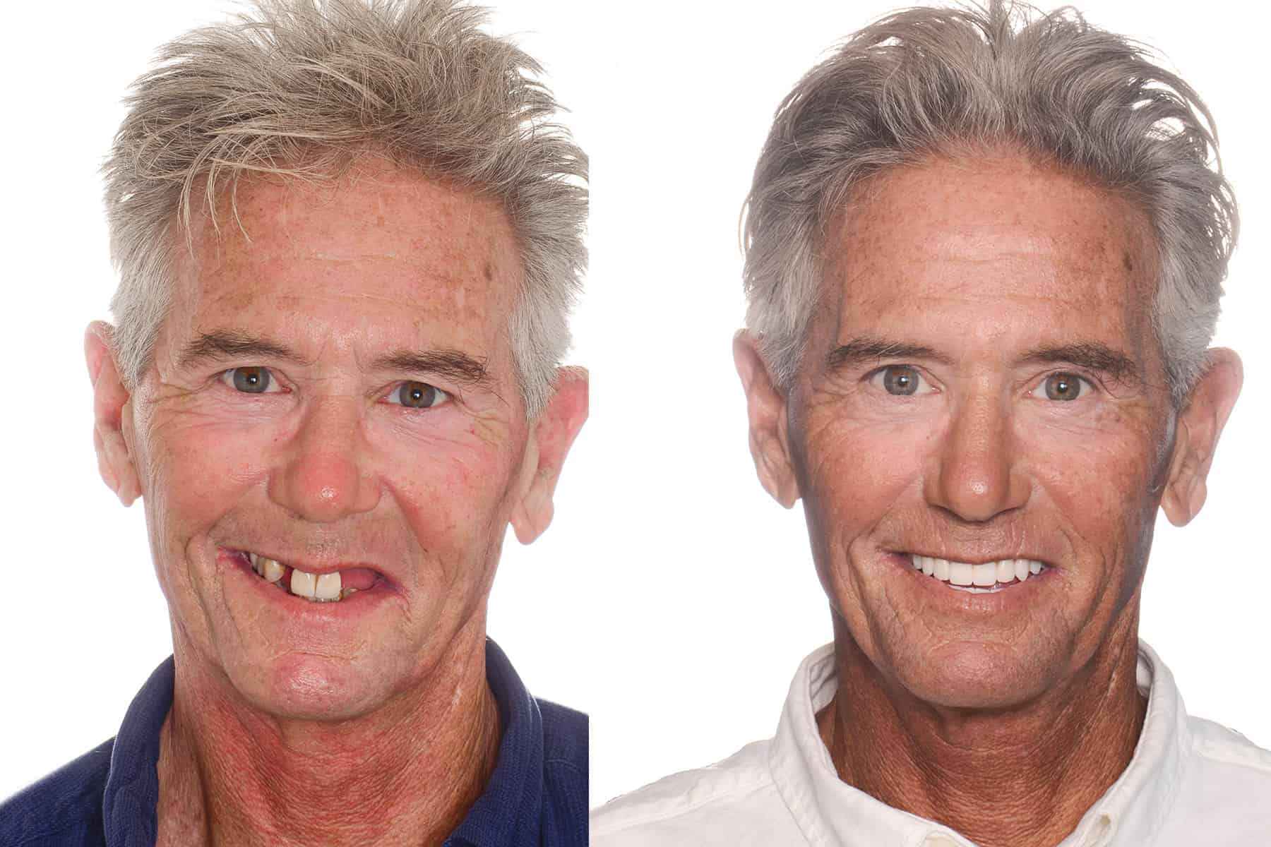 Before and after photo of patient after all on 4 dental implant treatment.