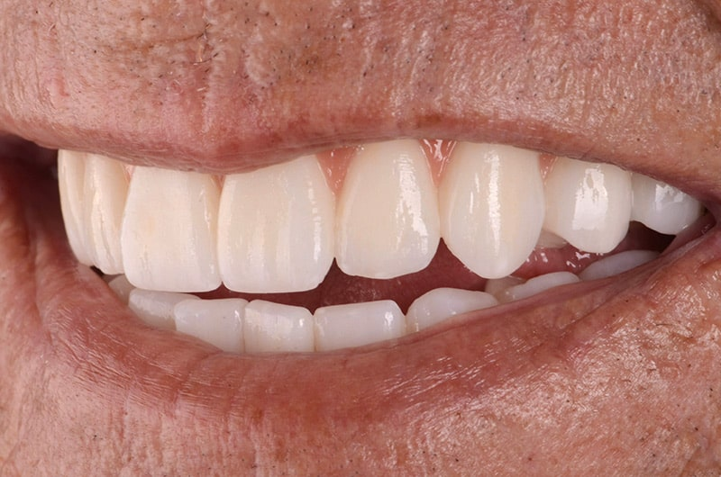 Front view of patient's teeth after treatment at ArtLab Dentistry.
