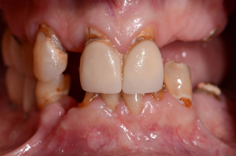 Front view of patient's teeth before treatment at ArtLab Dentistry.