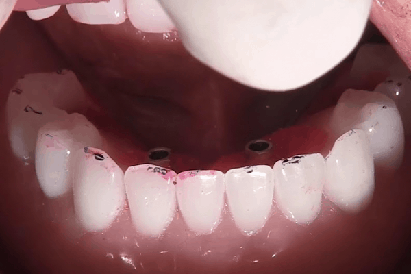 All On 4 Dental Implant Guide - where teeth are rubbing