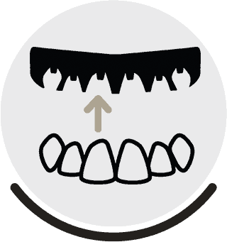Different Types of Dentures - Brentwood Dentist