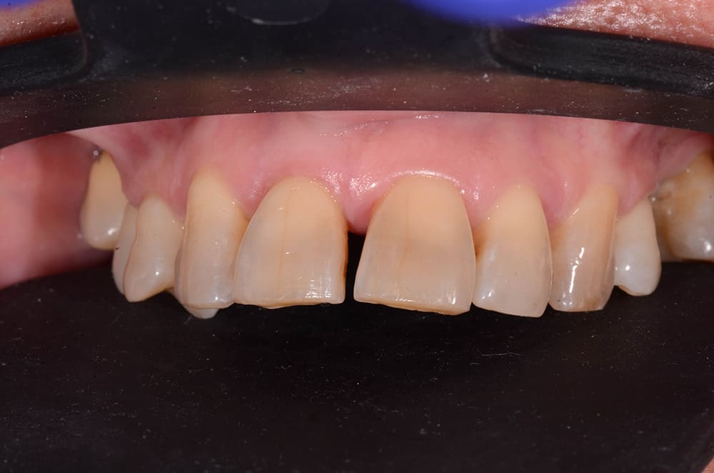 """""""Before"""" photo of ArtLab Dentistry patient before all-on-4 treatment."""