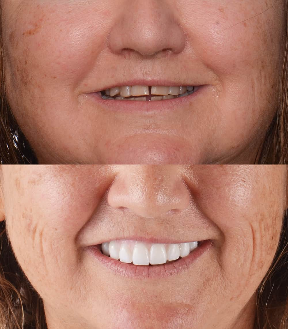 Before and after upper dental implants