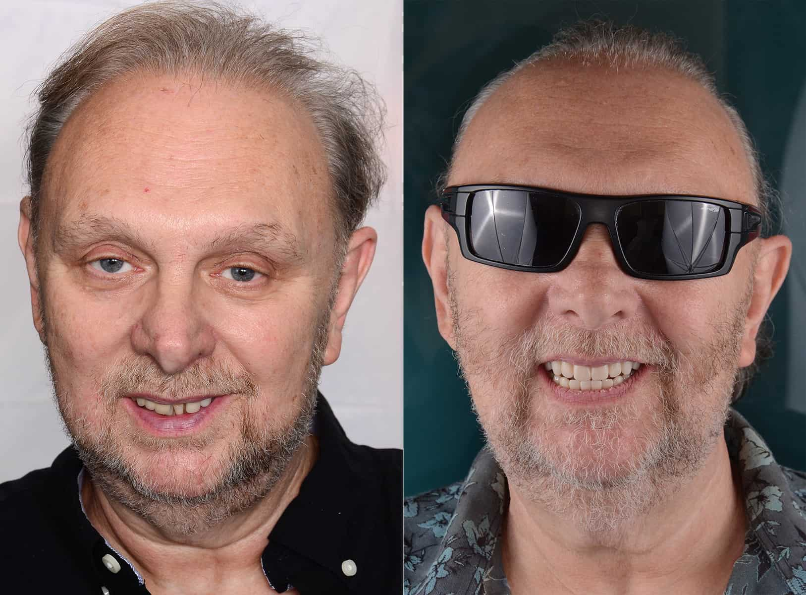 Before and after all-on-4 dental implants