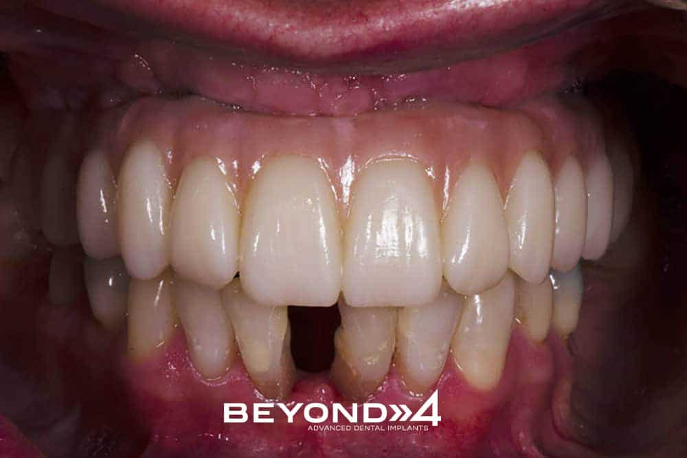 Beyond All On 4 - Oliver - view of full mouth - new teeth upper