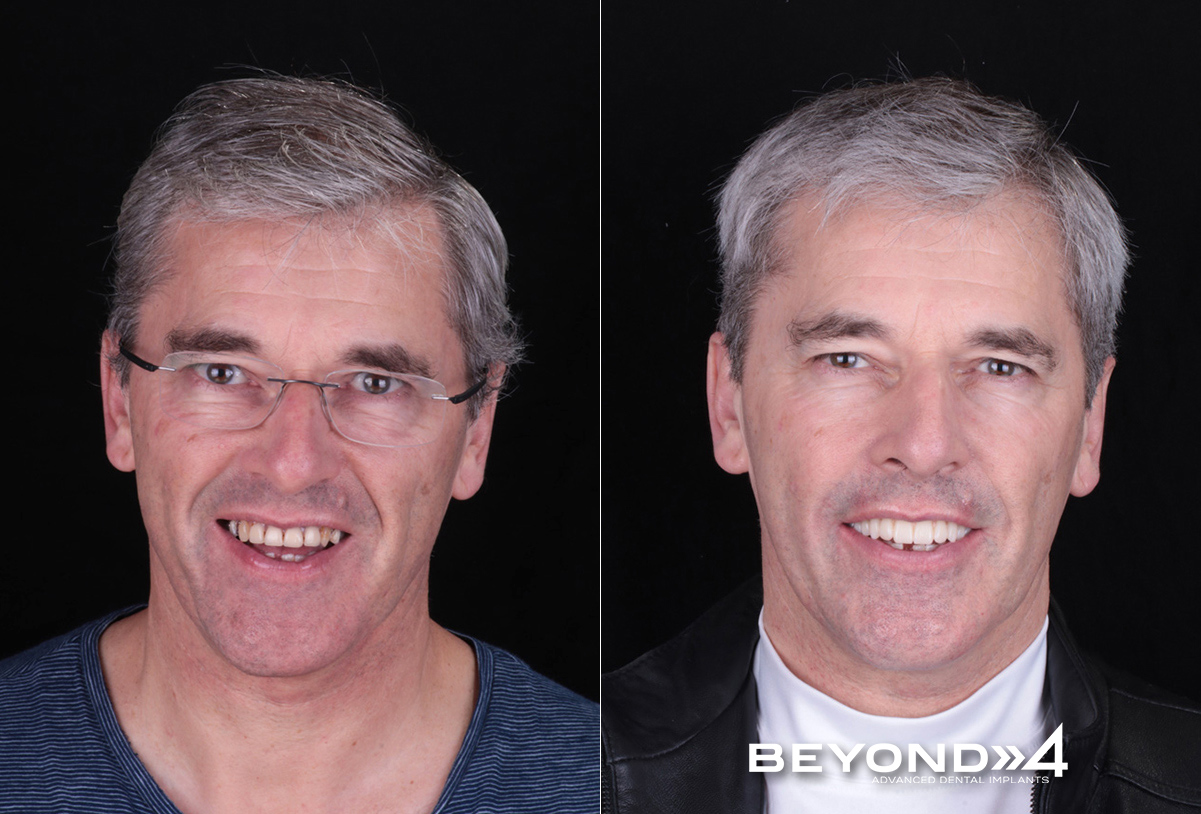 Beyond All On 4 - Oliver Before and After All On 4